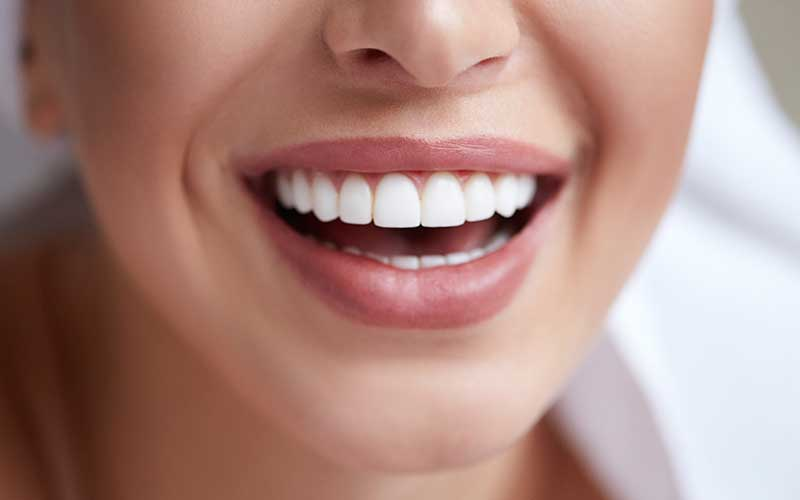 Are-You-Ready-For-Porcelain-Veneers
