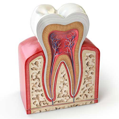 Does Teeth Whitening Damage Your Teeth