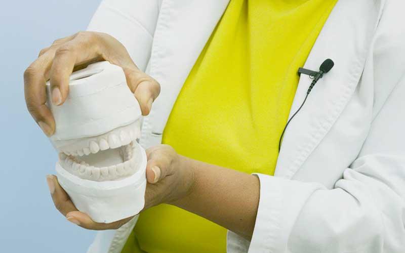 3D-models-of-porcelain-veneers