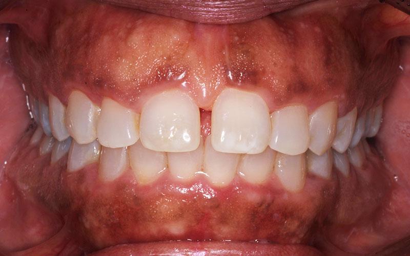 dr catrise austin smile makeover