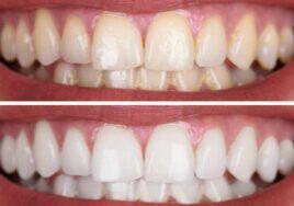 does teeth whitening work